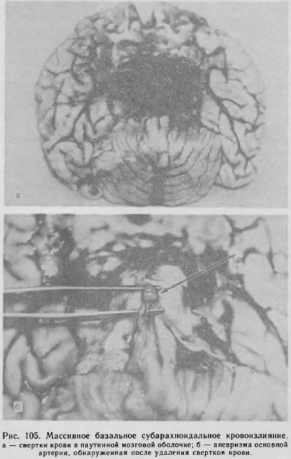 Вскрытие больного с атеросклерозом thumbnail