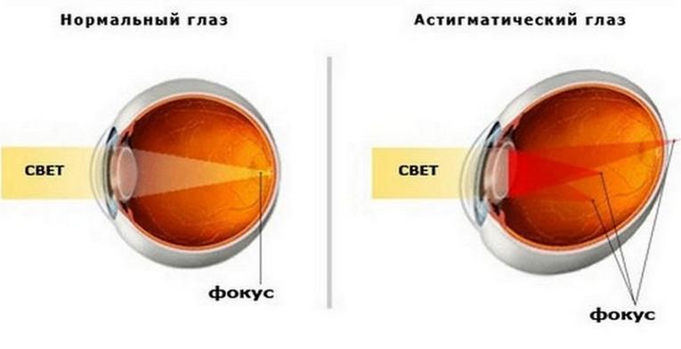 Лазерная корректировка зрения уфа